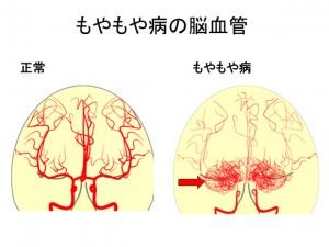 もやもや病の脳血管