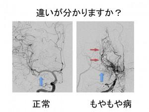 もやもや病の脳血管撮影