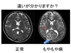 もやもや病のMRI