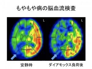 もやもや病の脳血流検査